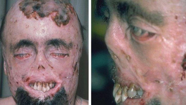 Лицо человека, страдающего от порфирии