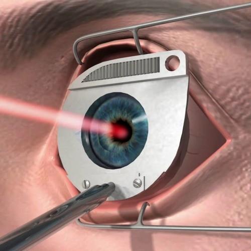 Лазерный зонд, который обеспечивает точное лечение катаракты