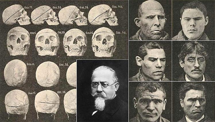 Теория Чезаре Ломброзо: преступник - это с самого рождения