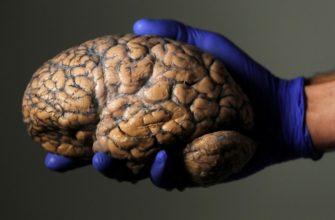 Мозг - заглавная